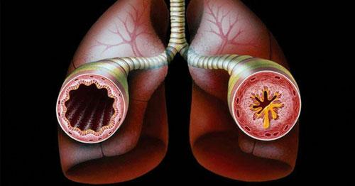 Психосоматические причины возникновения астмы