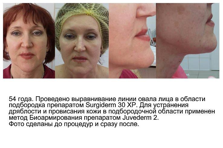 effektivnyj-sposob-izbavitsya-ot-mimicheskix-morshhinok-2