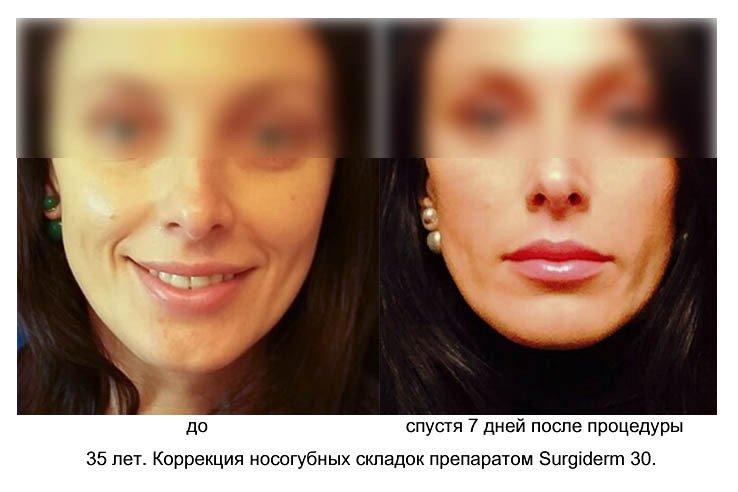 effektivnyj-sposob-izbavitsya-ot-mimicheskix-morshhinok-3