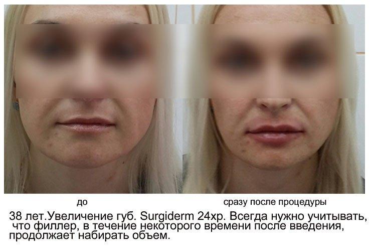 effektivnyj-sposob-izbavitsya-ot-mimicheskix-morshhinok-4