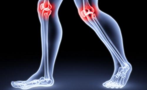 Психосоматика: колени