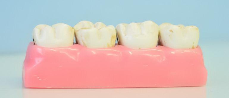 свищ зуба психосоматика